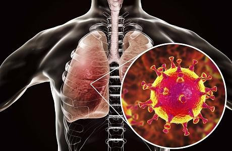 韩国生命工学研究院:揭示新冠肺炎患者肺损伤机理
